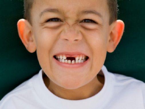 Nằm mơ thấy rụng răng mang lại những điềm báo gì trong cuộc sống