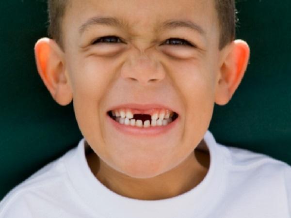 Giải mã điềm báo giấc mơ thấy rụng răng