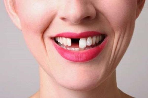 Ý nghĩa giấc mơ thấy rụng răng