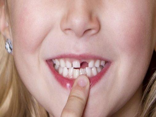 Nằm mơ thấy rụng răng là điềm báo gì? Nên đánh con gì dễ trúng